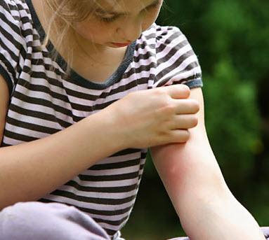 Место укуса клопа у ребенка