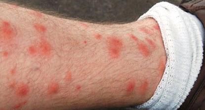 Красные пятна от укусов
